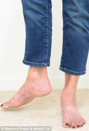 0ed47d19a4 Collection One Leg Shorter Than The Other Pictures - Reikian | Leg ...