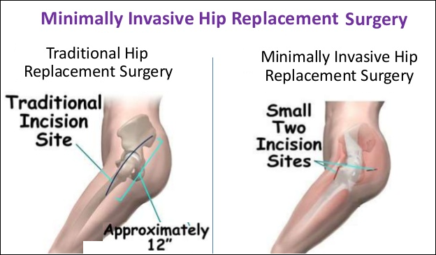 Why You Should Know About Minimally Invasive Hip Surgery Hip Surgery Hip Replacement Surgery Surgery