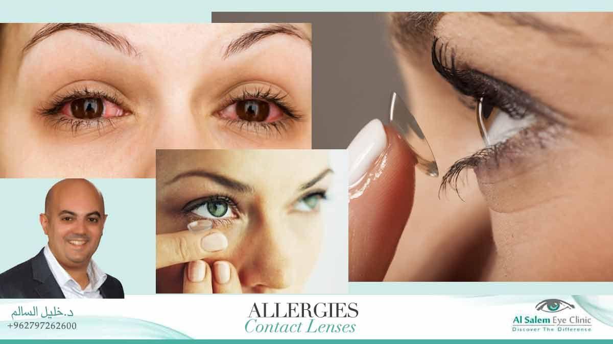 حساسية العين Eye Doctor