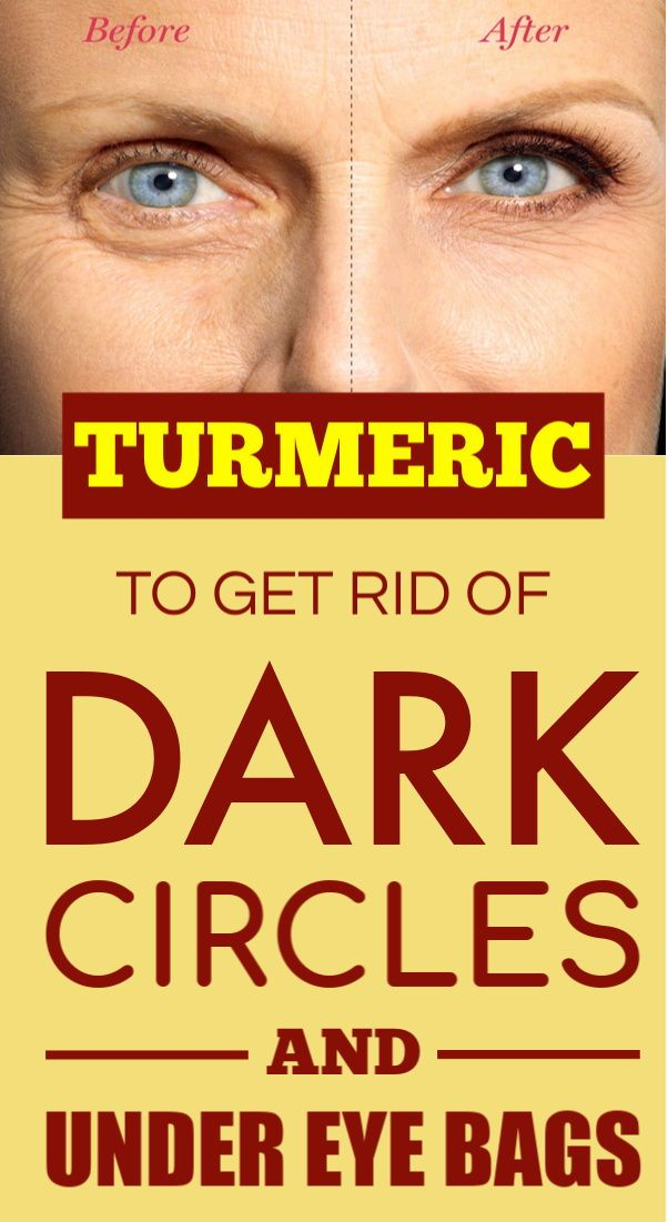 How to Use Turmeric to Get Rid of Dark Circles and Under Eye Bags #darkcircle