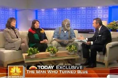 Are not redhead man turned blue colloidal silver duly