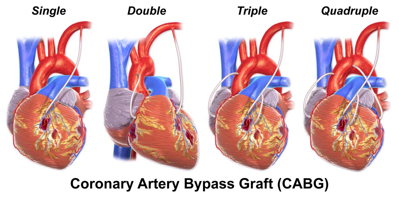 Blausen 0152 CABG All - Coronary artery bypass surgery - Wikipedia ...