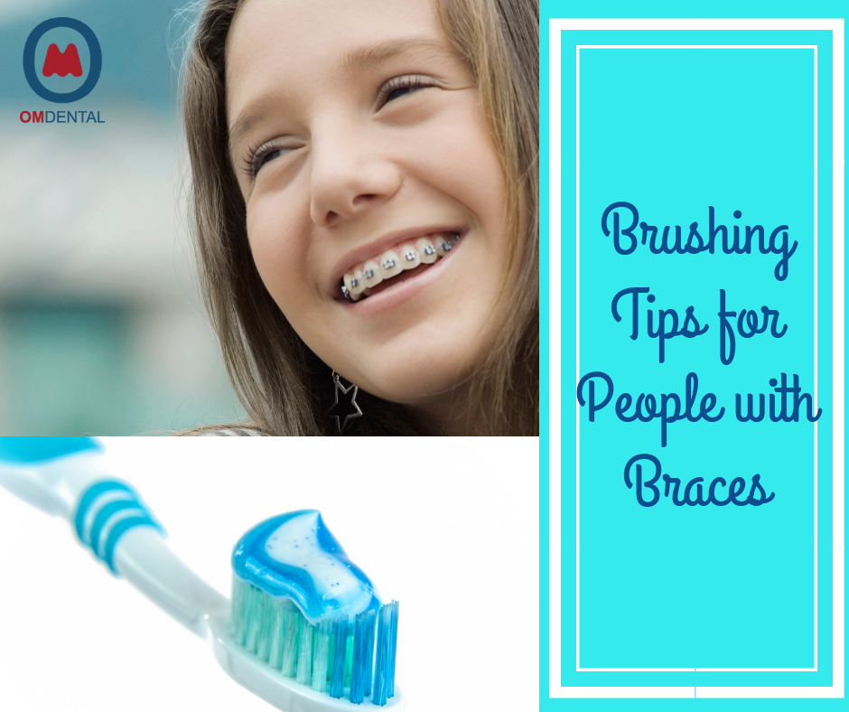 Wearing braces? Then read this post to know the best way