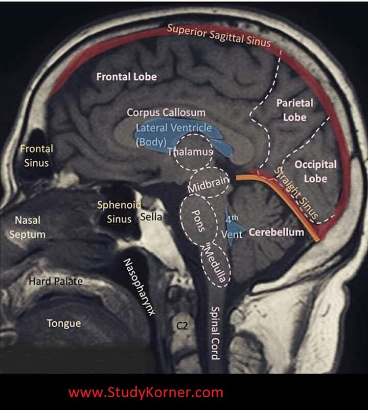 Well labelled MRI of the brain | Radiology, Medical, Anatomy