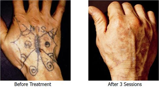 unwanted tattoo removal tattoo removal   Hand Tattoo Removal ...