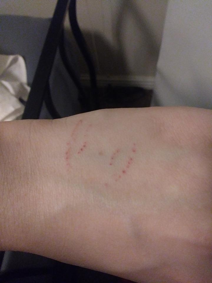 Pin On Hacks Skin Care