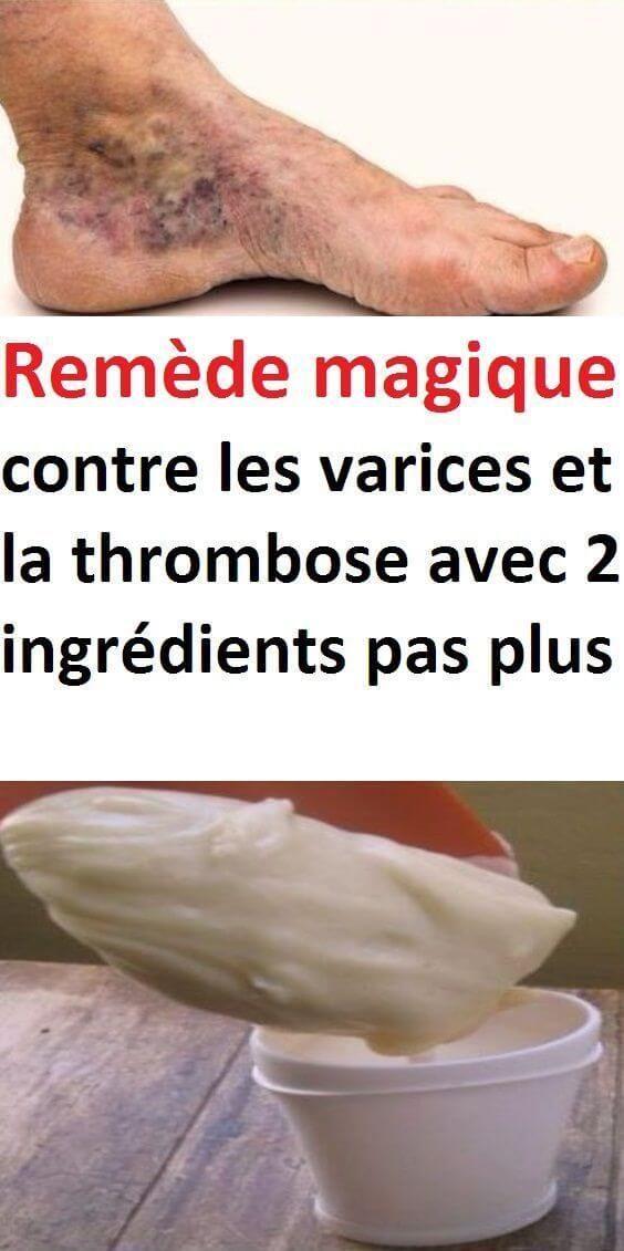 rem de magique contre les varices et la thrombose avec 2. Black Bedroom Furniture Sets. Home Design Ideas