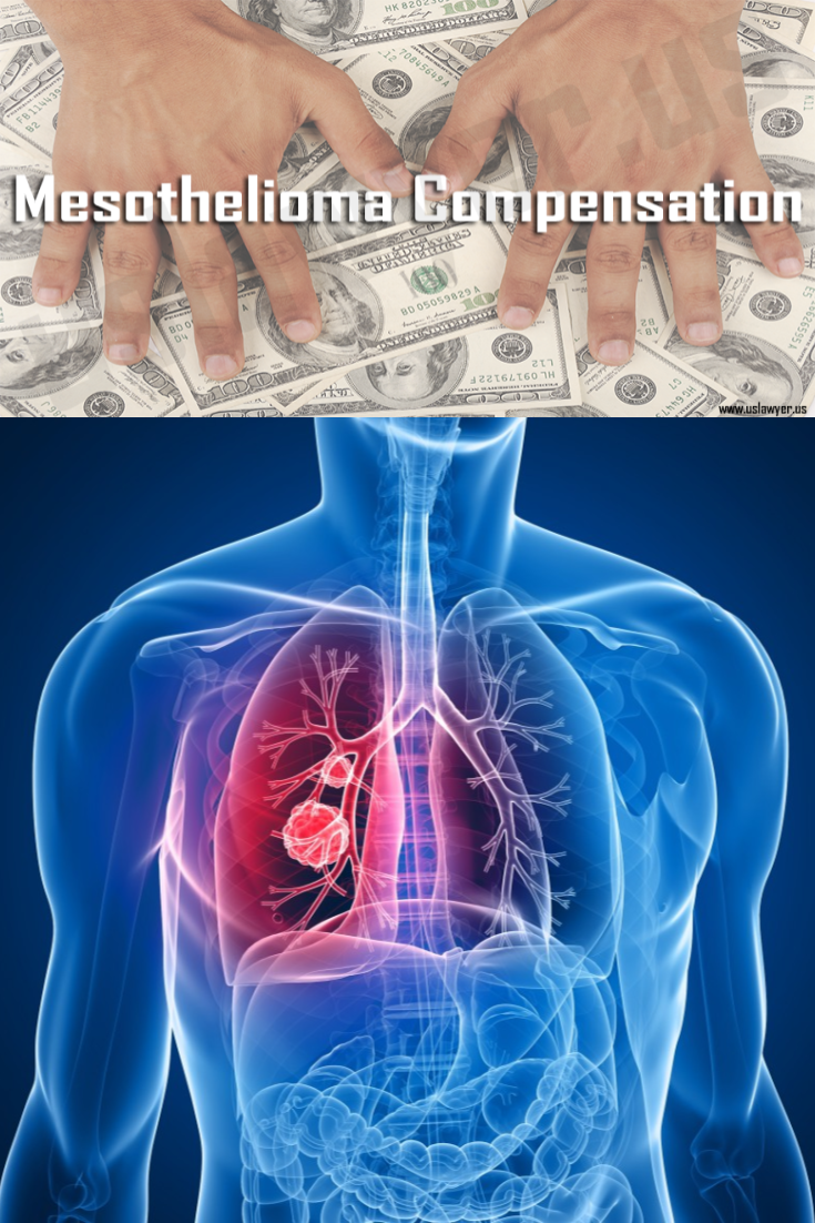 Pin on Mesothelioma Lawsuit