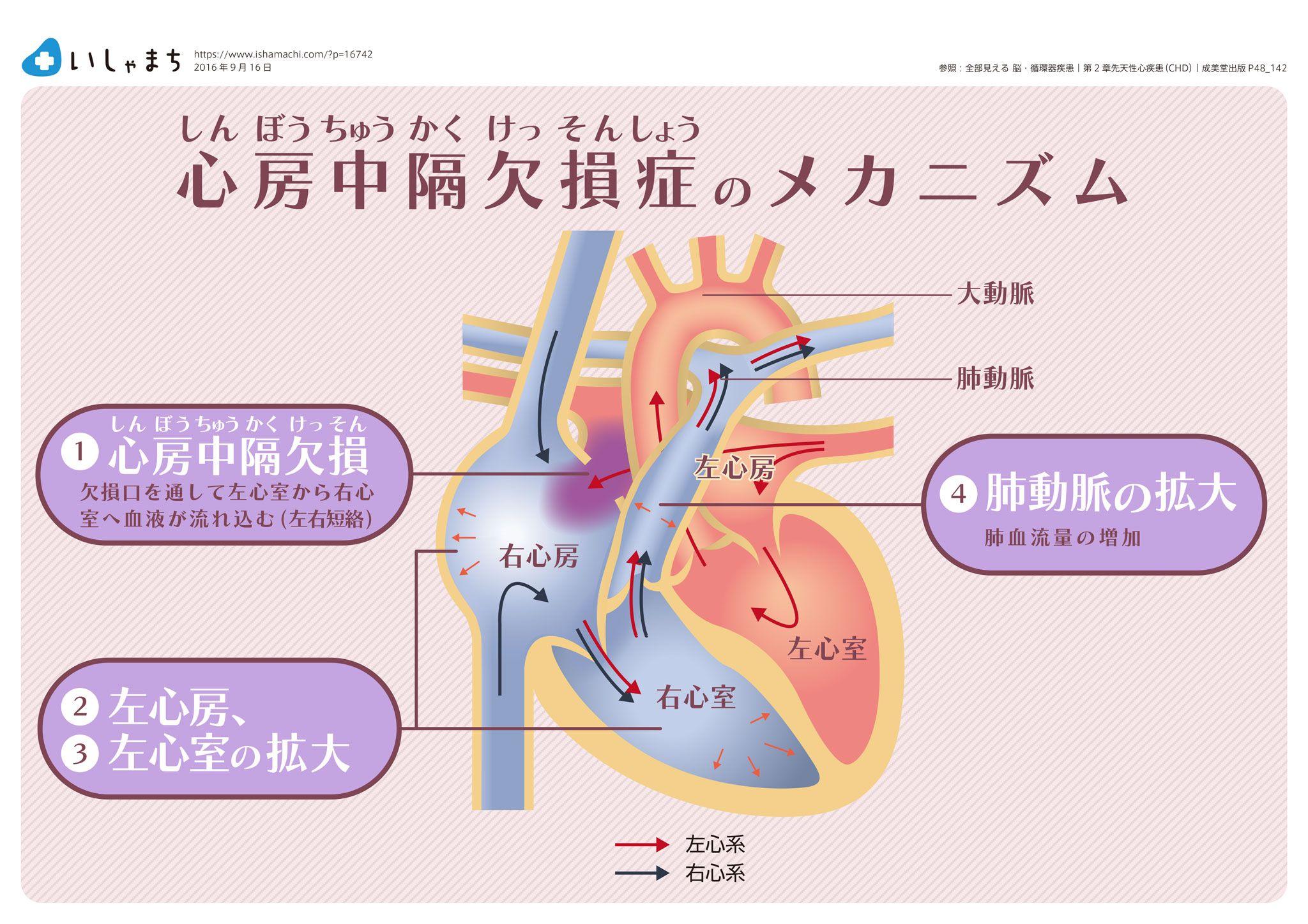 心房中隔欠損症のメカニズム_inf...