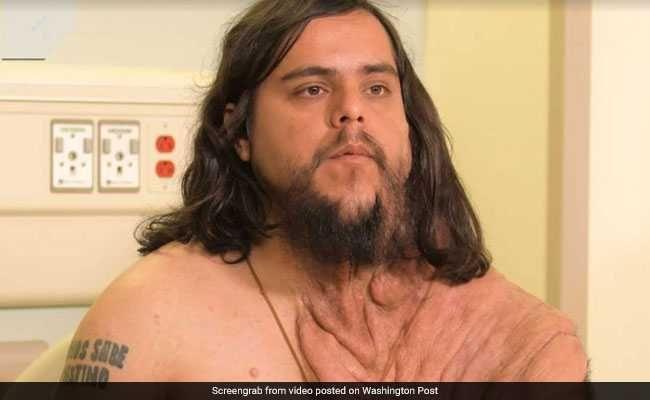 Rare Skin Disease Left Him Isolated. Surgery Gave Him Back ...