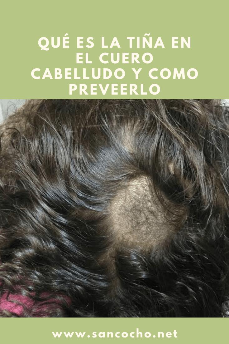 como curar la tiña en el cuero cabelludo