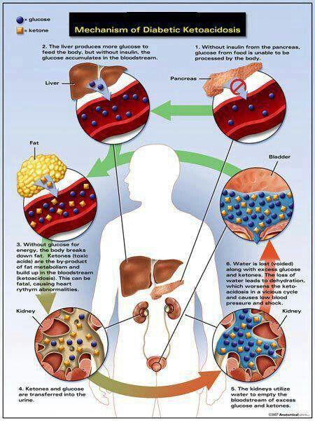 Dieta cetogenica para diabetes tipo 1
