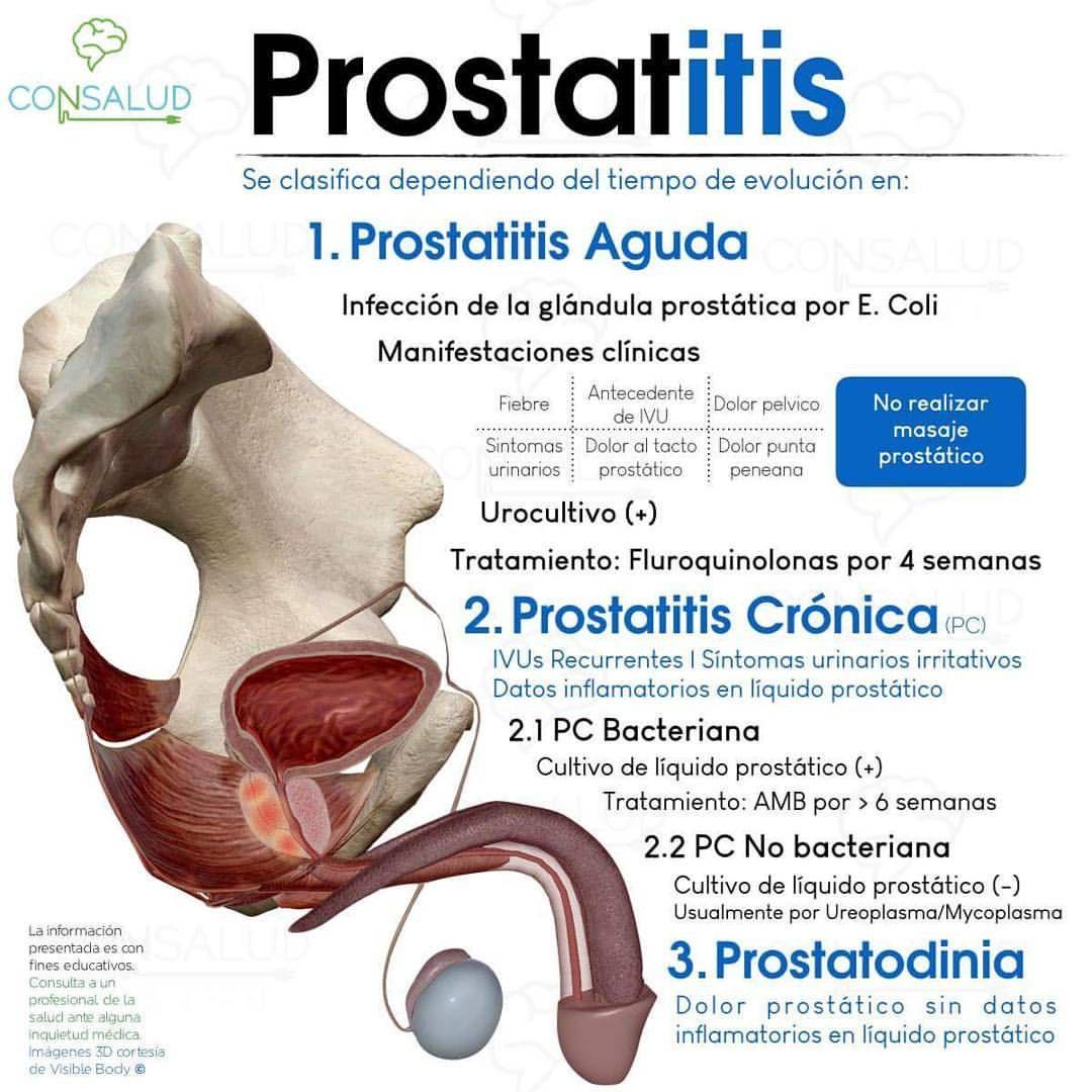 terapia de ejercicio de prostatitis