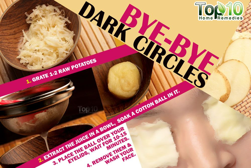 How To Get Rid Of Dark Circles Fast | Top 10 Home Remedies ...