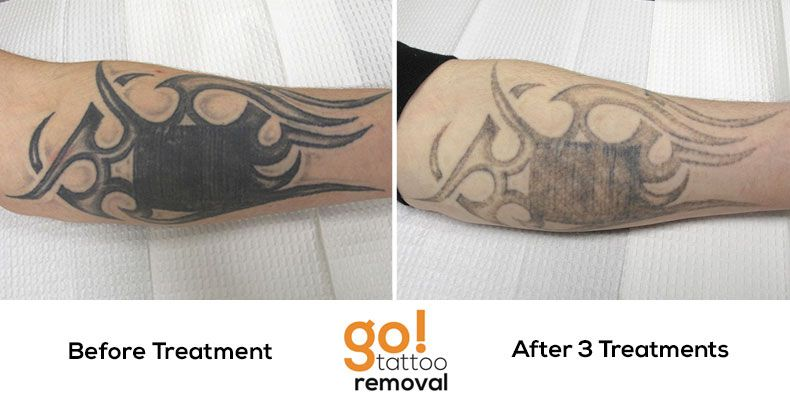 Making great progress on this clients arm after 3 laser