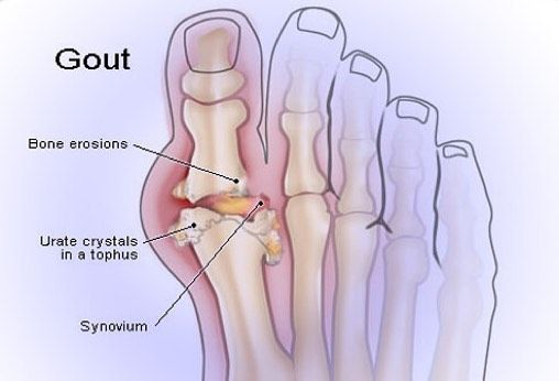 Experiencing sudden severe pain in your joints? Does your big toe ...