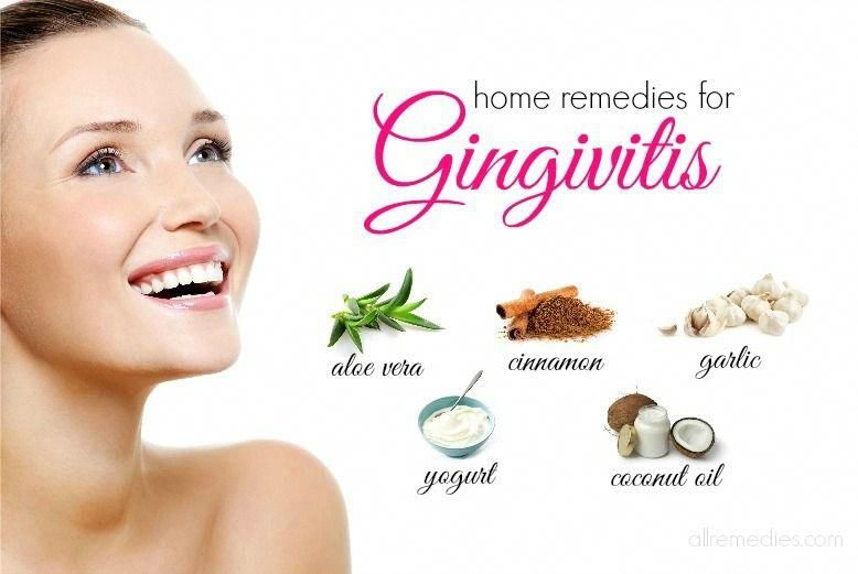 27 natural at home remedies for gingivitis in humans