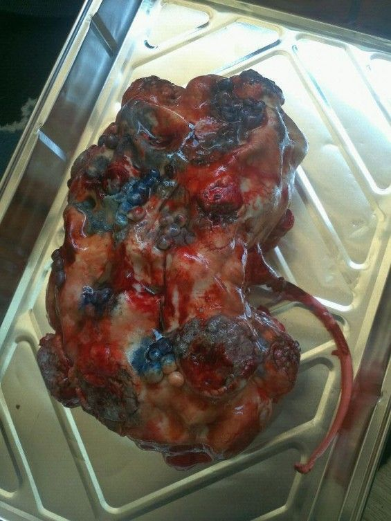 11 Disturbing Cakes That Look Like Body Parts | ODDS    And