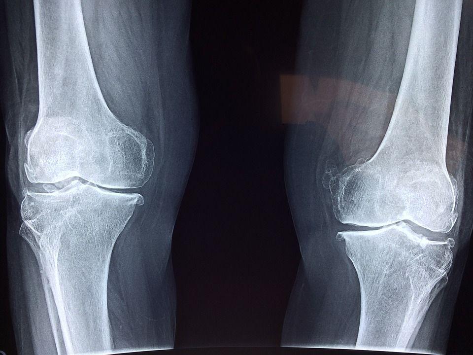 artrita pe genunchi