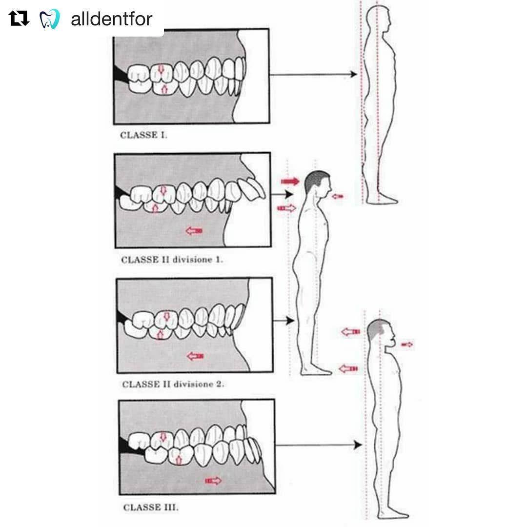 Dental Assistant Jobs Near Me Dental braces, Dental