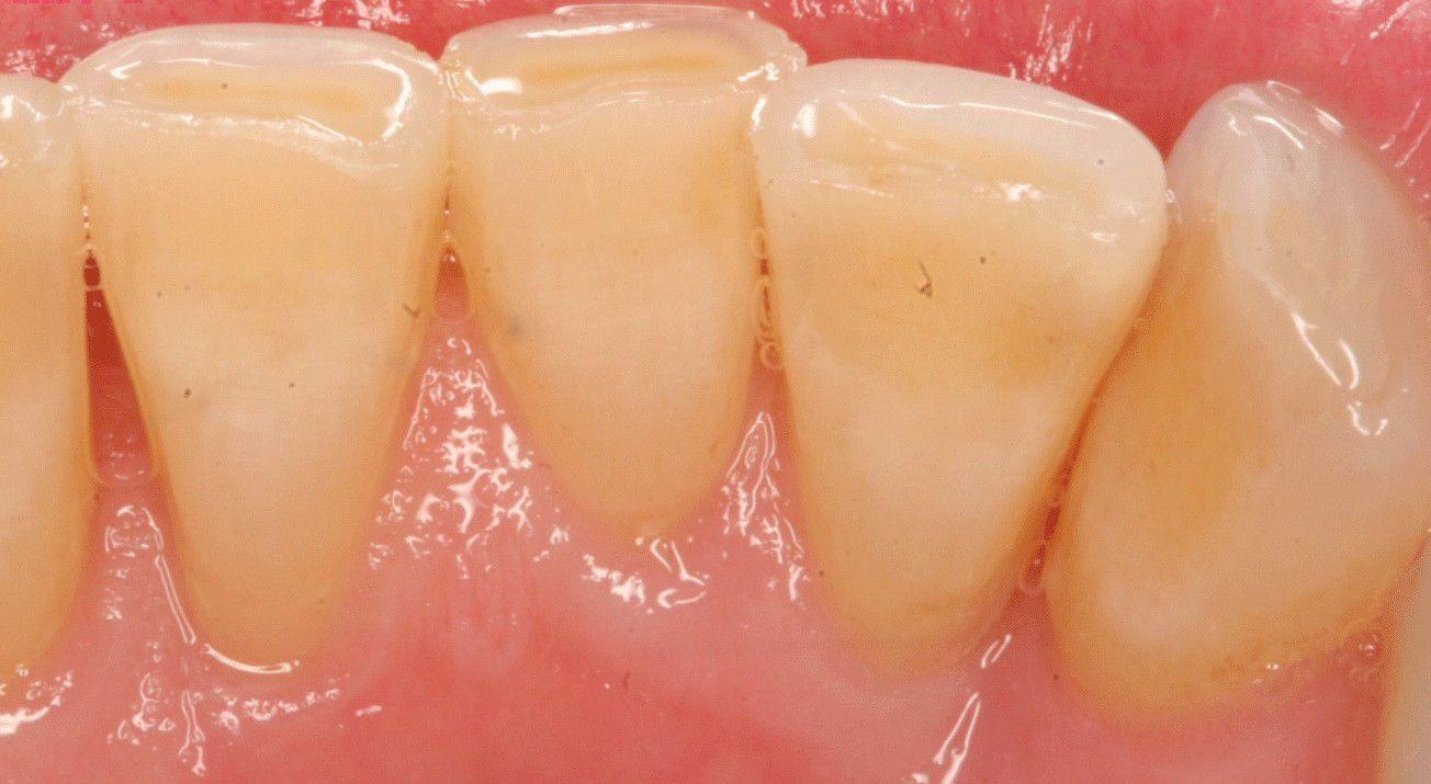 Pin on Teeth care