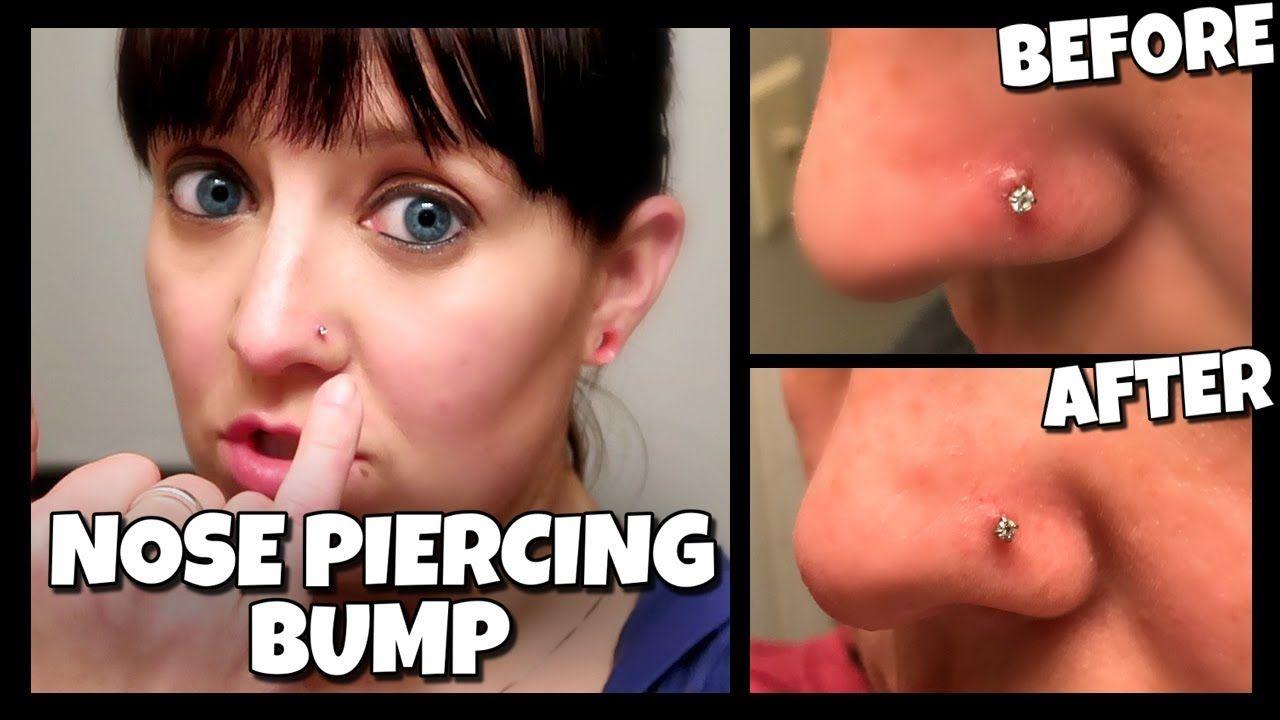 a12babee747c09947a7cc2a2ab40b37f - How To Get Rid Of Nose Ring Bump Overnight