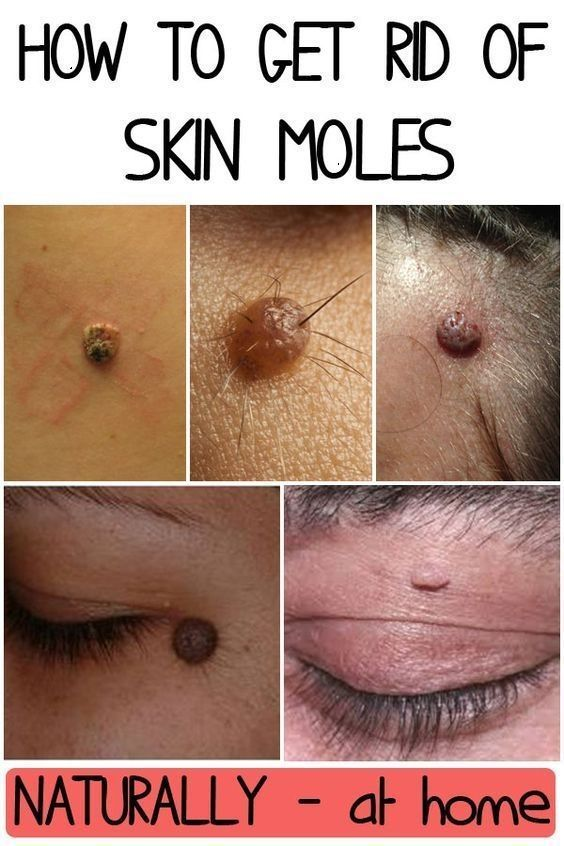 How To Remove Flat Brown Moles Naturally