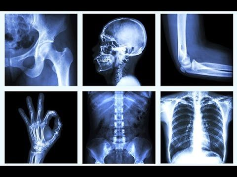 31+ Can you see osteoporosis on an x ray information