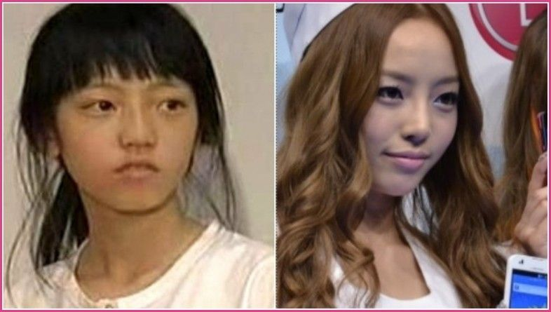 K Pop Stars Before And After Plastic Surgery Plastic Surgery Before And After Face Moisturizer Anti Aging Celebrity Plastic Surgery Plastic Surgery