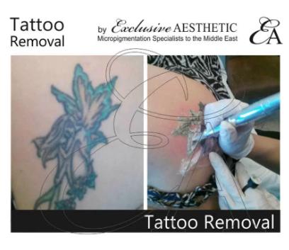 Tattoo Removal for Body Art Tattoos, Rejuvi Tattoo Removal