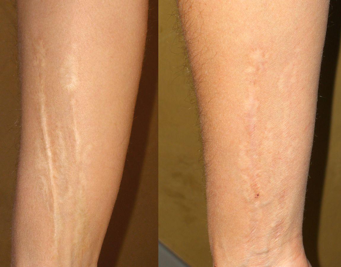 علاج ندبات الجلد بوصفات طبيعية من البيت Beauty Tattoos