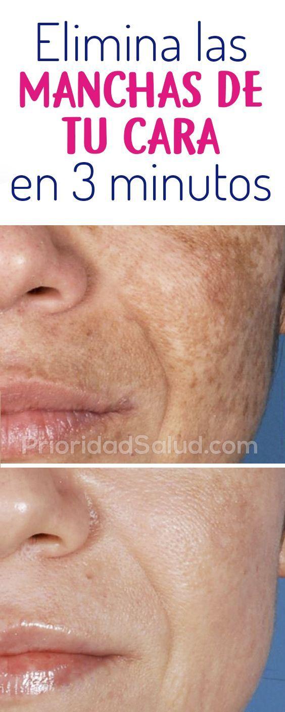 como eliminar las manchas en la piel de la cara