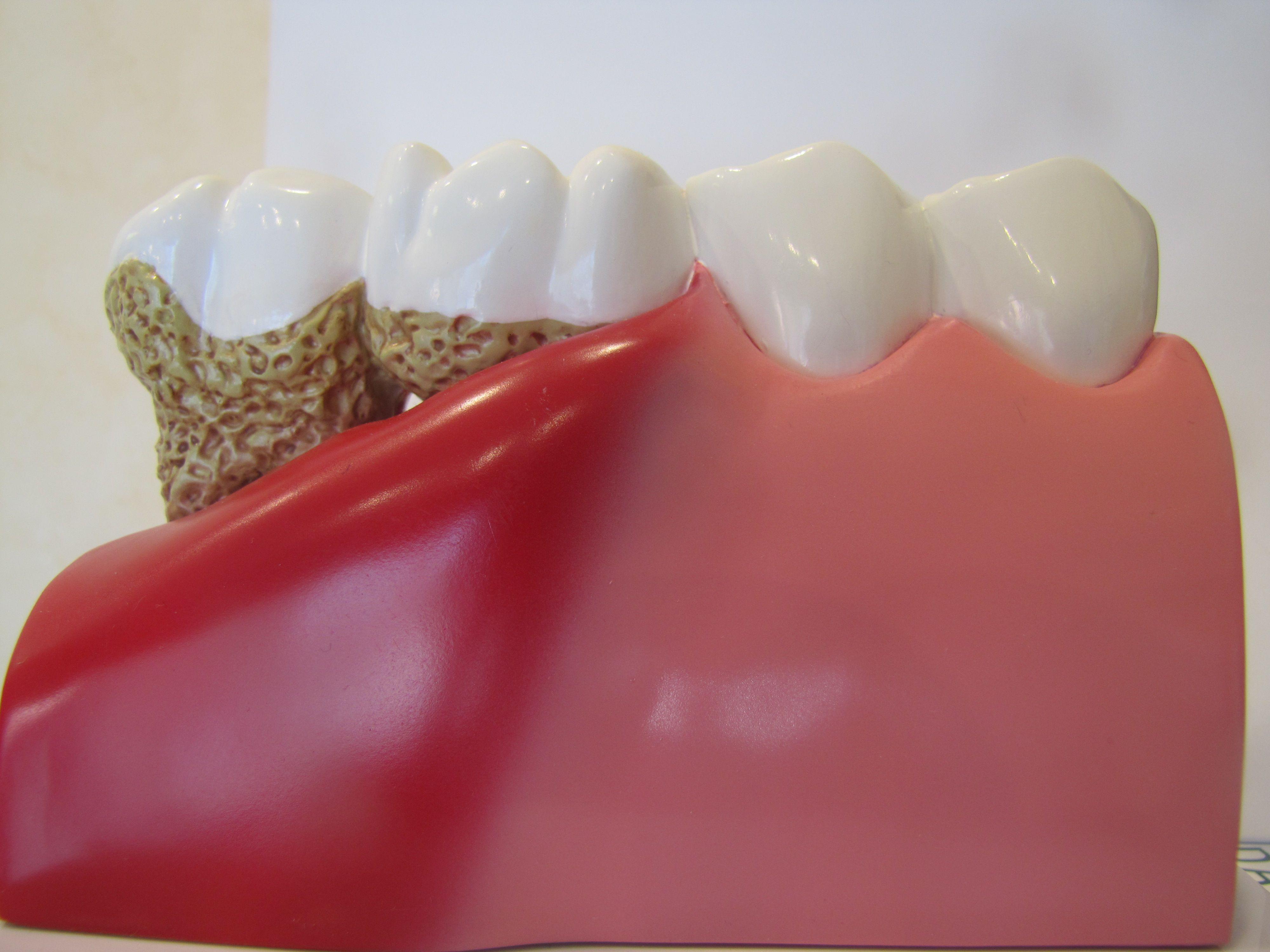 Dentoform Model Comparison Of Periodontal Disease Vs Healthy Gingiva