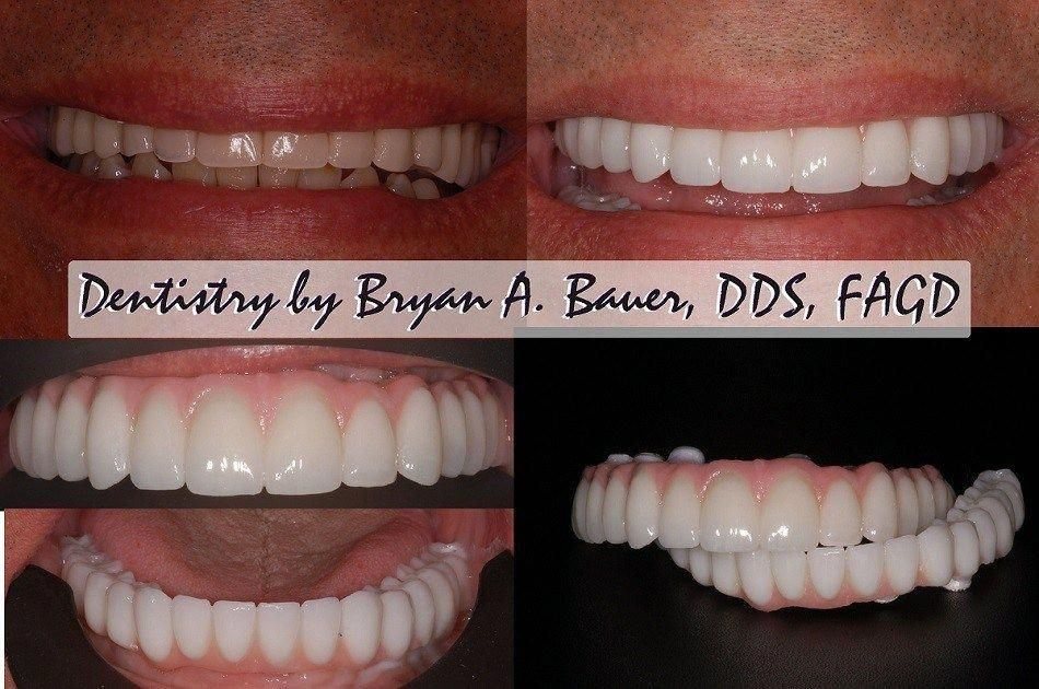 Robust Dental Implants Before And After Mouths toothcare