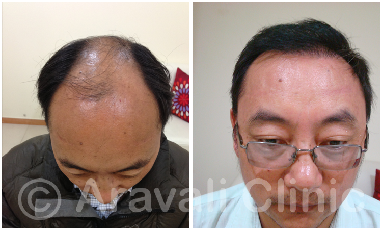 Hair Transplant In Delhi Health Tips Stay Healthy Stay Fit