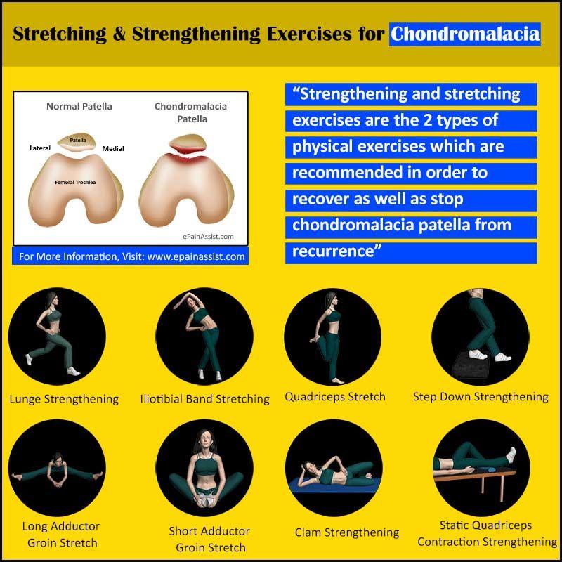 Chondromalacia Patella Chondromalacia, Sports massage