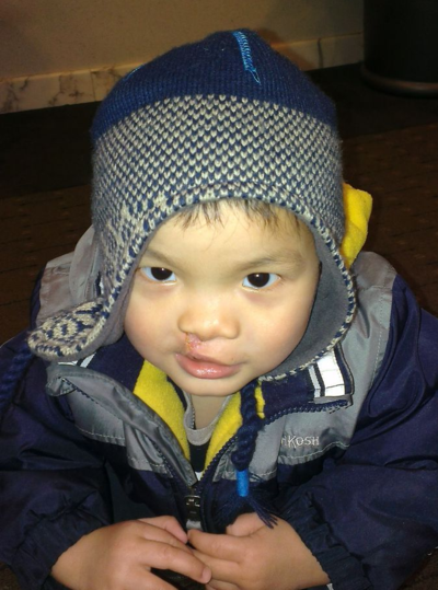 From Adoptive Parents: Advice on Cleft Conditions- What you May Not Know China adoption cleft lip cleft palateChina adoption cleft lip cleft palate