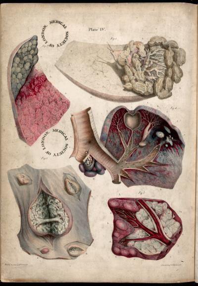 Pulmonary tuberculosis. Plate IV. Pathological anatomy. Carswell ...