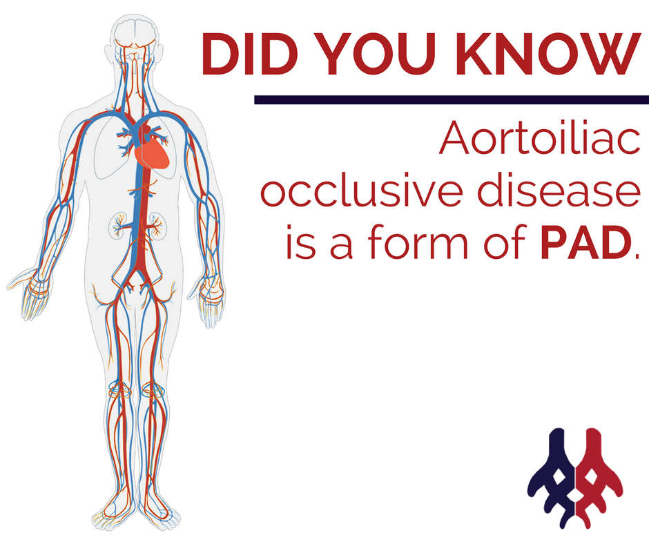 How Can Aortoiliac Occlusive Disease Be Treated We Explain Https