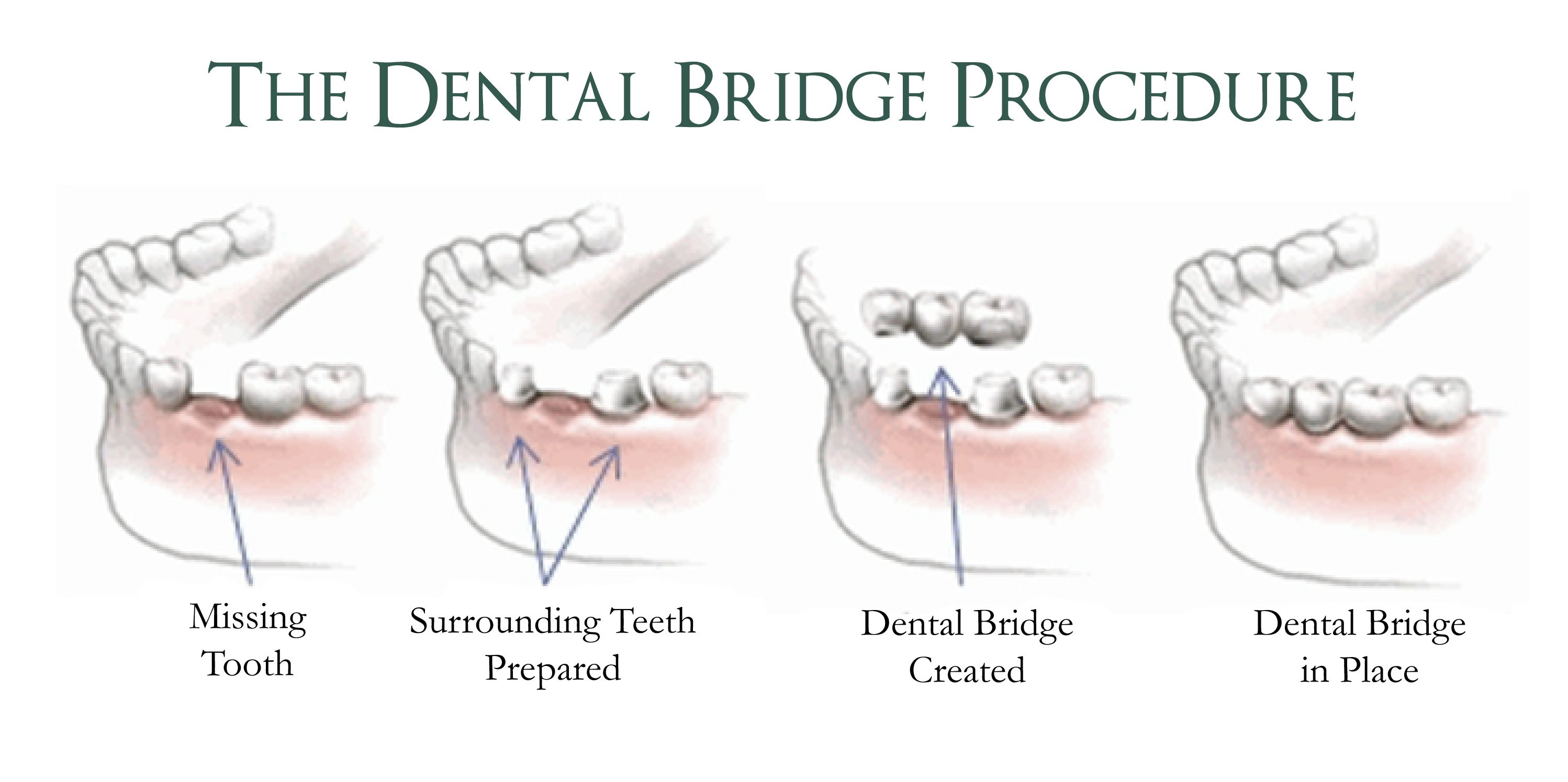 How long does it take to get a #dental #bridge and what is the ...