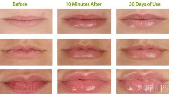 lip plumper test
