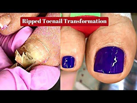 Ripped Toenail Treatment Professional Pedicure Tutorialgross To