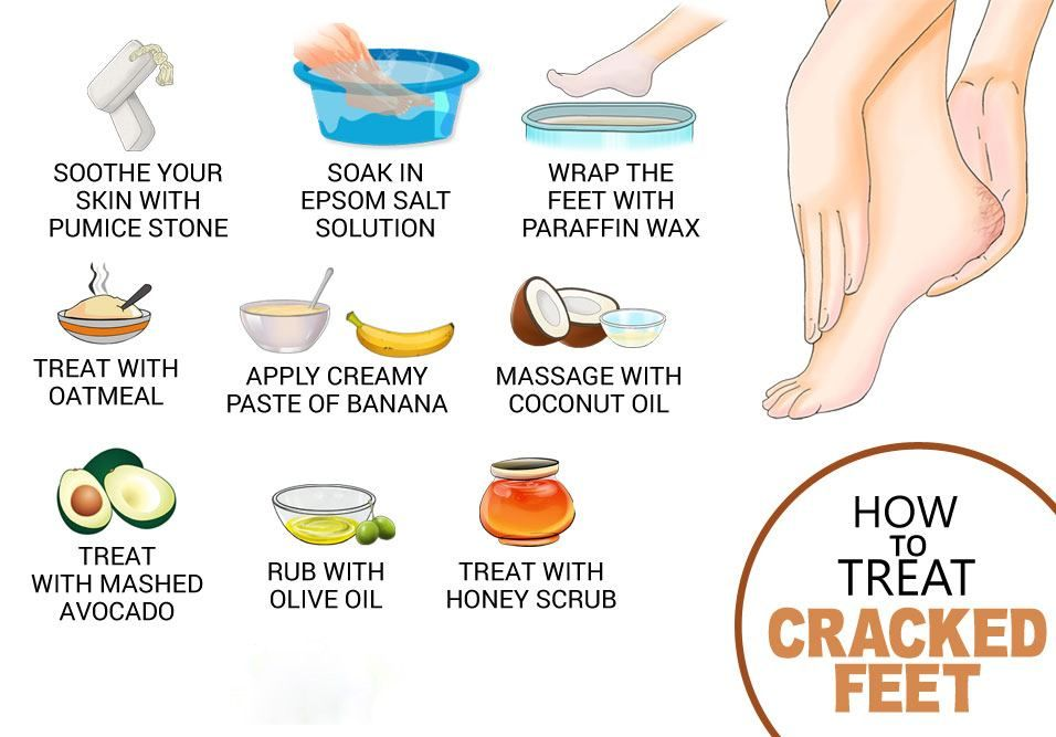 Pin On Foot Injury Prevention