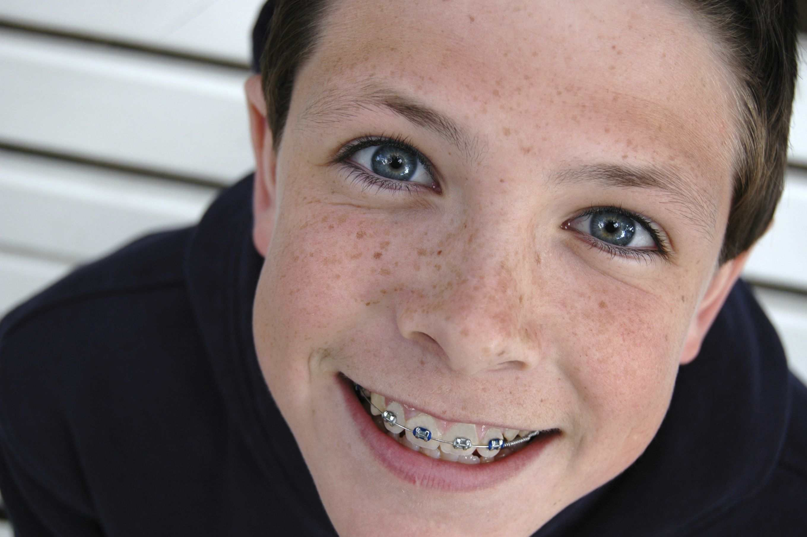 Orthodontia We Have Dental Plans That Include Orthodontic