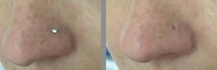 22 Best Piercing Images Piercing Nose Piercing Keloid