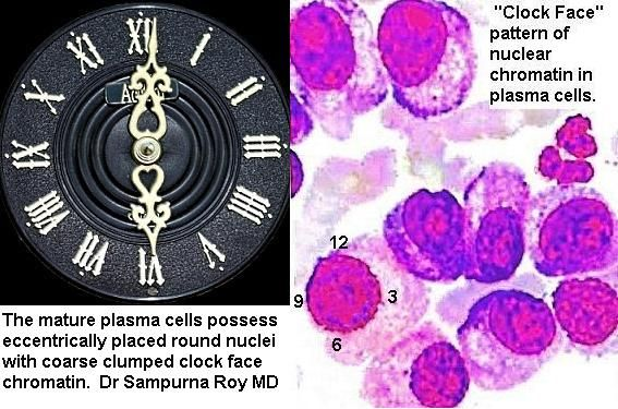 Clock Face Chromatin Pattern of Plasma Cells in ...