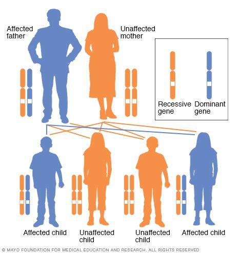 Autosomal Dominant Inheritance Pattern Huntington Disease