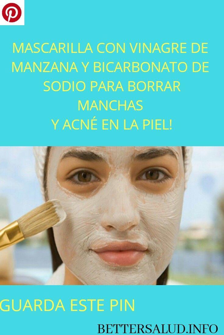 Ajustarse conferencia Llamarada  MASCARILLA CON VINAGRE DE MANZANA Y BICARBONATO DE SODIO PARA BORRAR  MANCHAS Y ACNÉ EN LA PIEL! #MASCARILLA #VINAGRE #MANZANA #BICARBONATO … |  Acne, Skin care, Face