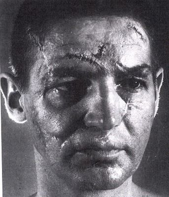 Detroit Redwings Hockey Goalie Terry Sawchuk And That Folks Is Why Goalies Wear Masks Hockey Red Wings Hockey Detroit Hockey