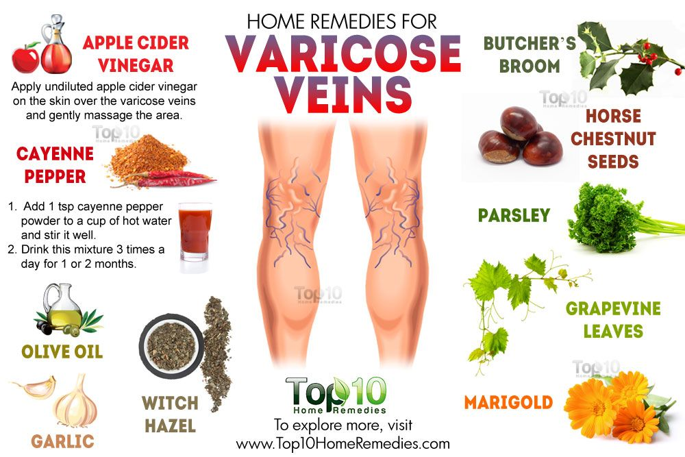 varices treatment legs